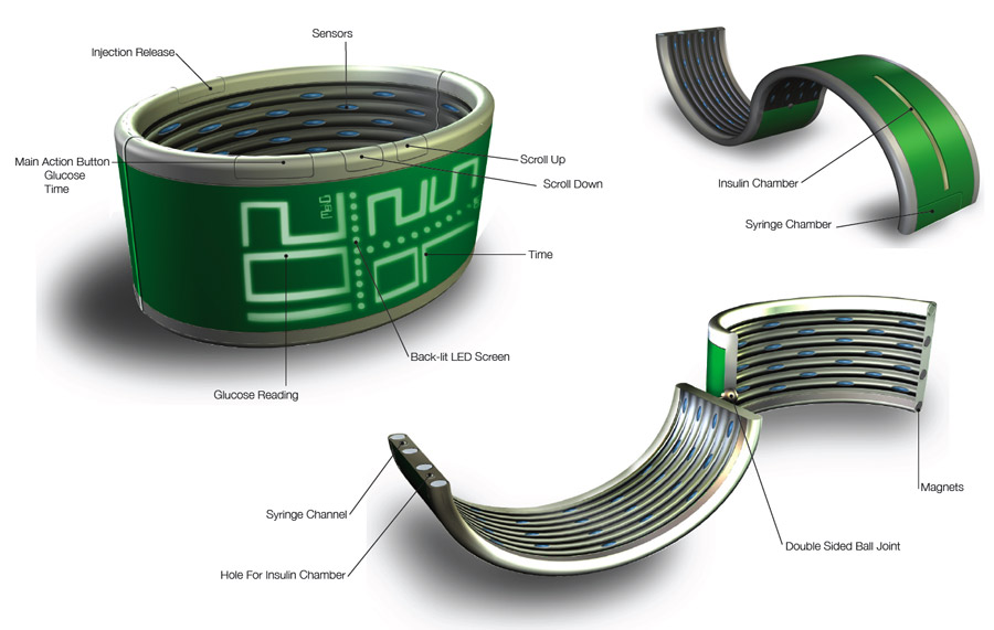 Advanced Diabetes Wristband Developed by Gluco(M)